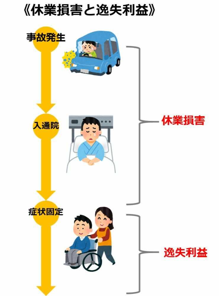 交通事故の逸失利益と休業損害