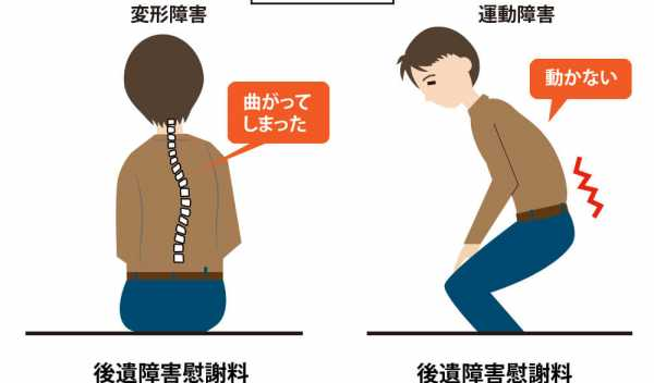 背骨後遺症のポイント