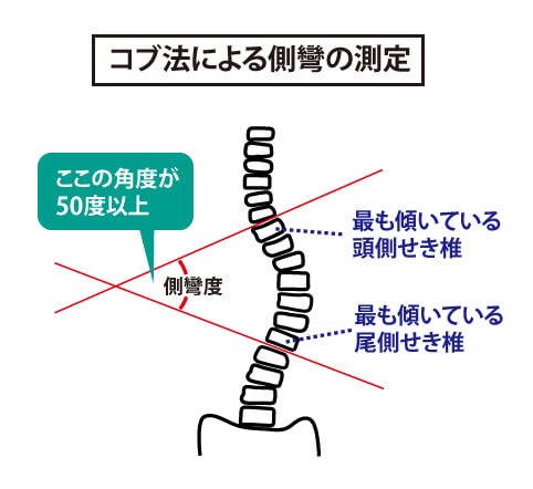 背骨後遺症の基準