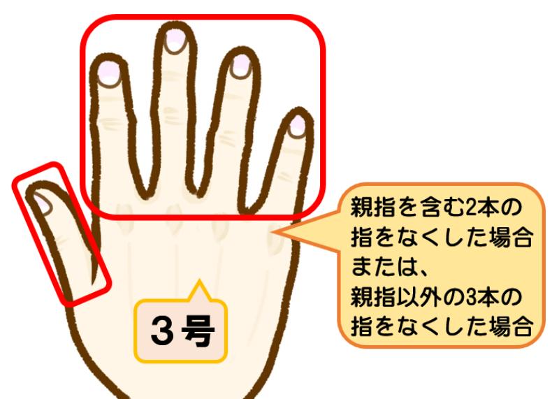 後遺障害等級8級3号