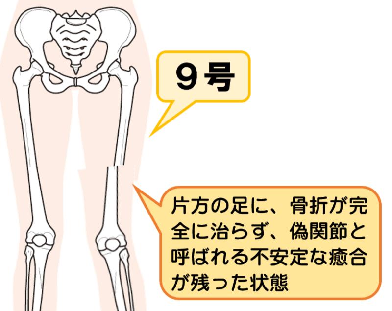 後遺障害等級8級9号