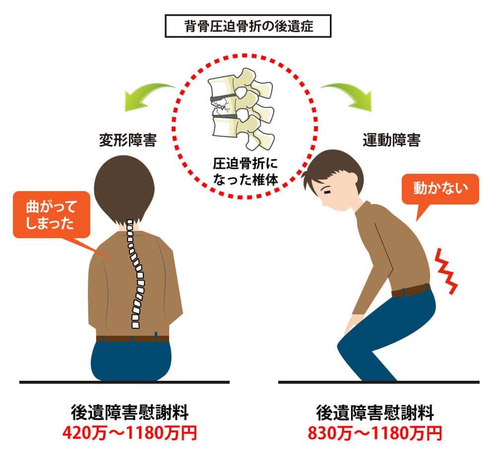 背骨圧迫骨折の後遺症のポイント