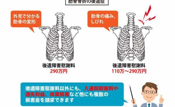 肋骨骨折の後遺症のポイント