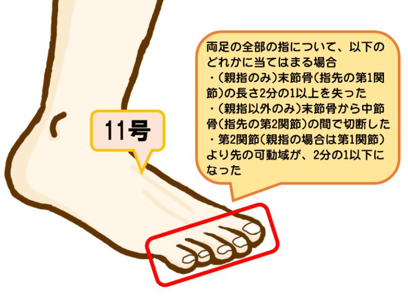 後遺障害等級7級11号