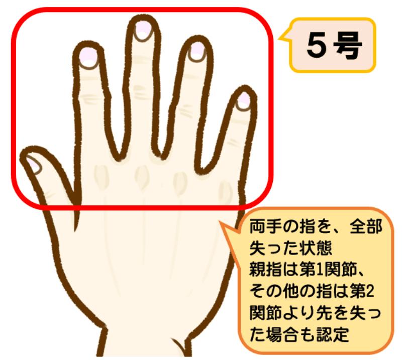 後遺障害等級3級5号