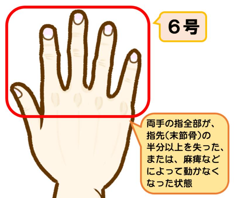 後遺障害等級4級6号