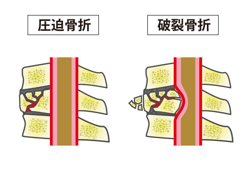 後遺症 骨折 腰椎 圧迫