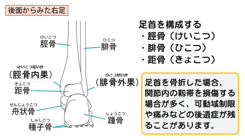 足首骨折の基礎知識