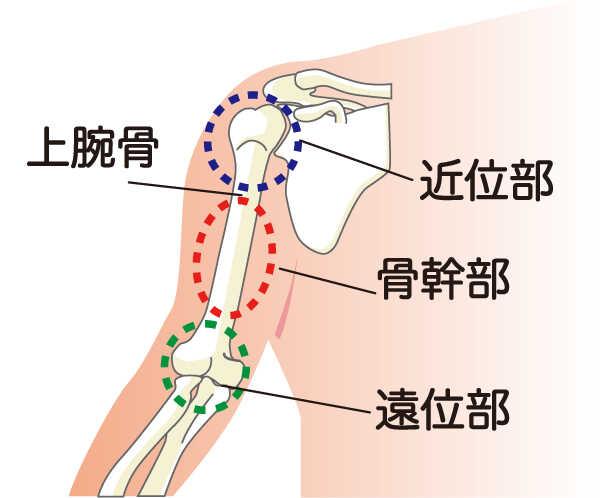 結節 骨折 腕骨 大 上
